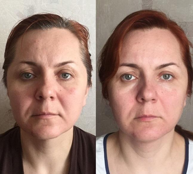 Фото до и после второй процедуры сплит-массажа