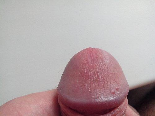 Увеличение полового члена при помощи операции
