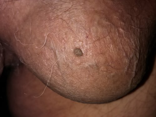 Вирус папилломы человека внешние признаки